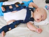 Bebeklerde Kalça Çıkığı Ve Tedavi Aşamaları