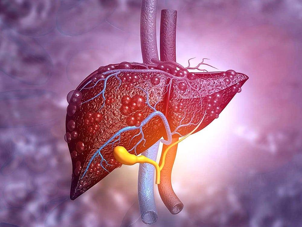 Karaciğer Yağlanması Ve Tedavi Yöntemleri