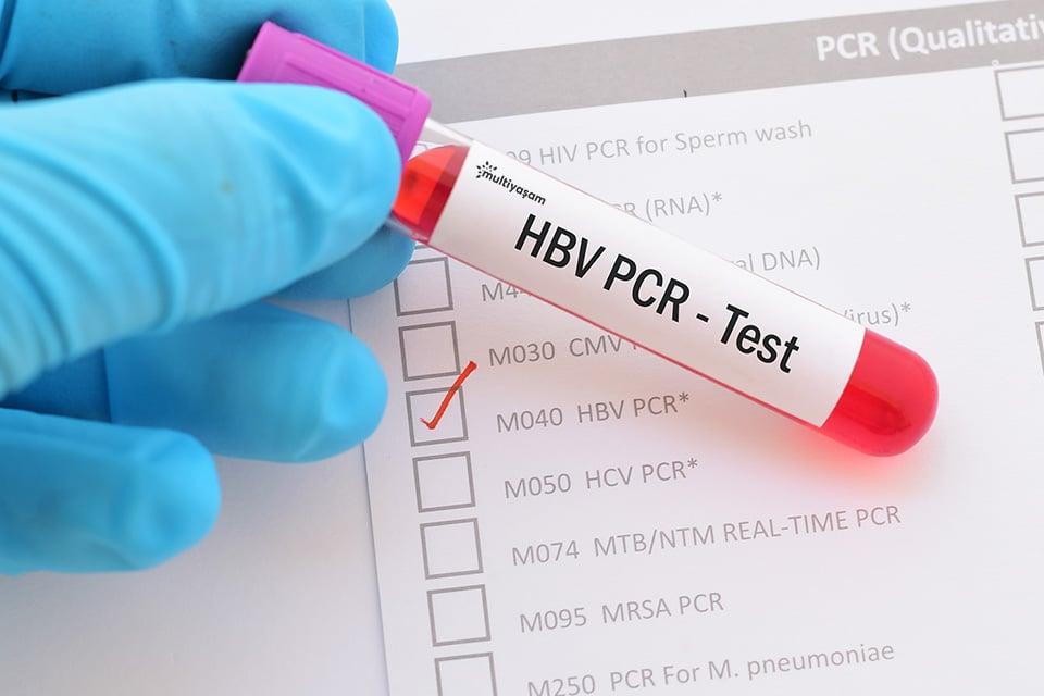 PCR Testi Ne Demek